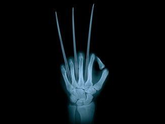 health hand